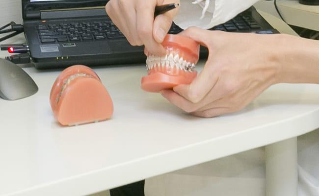 前歯だけの部分矯正
